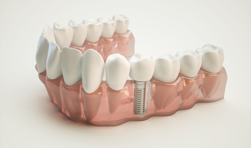 Affordable Dental Implants in Kennesaw GA area