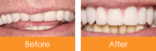 Dentist Kennesaw - Before After 01