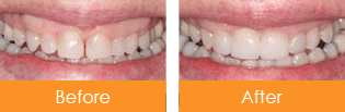 Dentist Kennesaw - Before After 02
