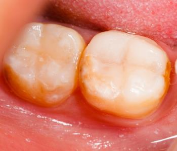 composite resin tooth fillings from dentist in kennesaw