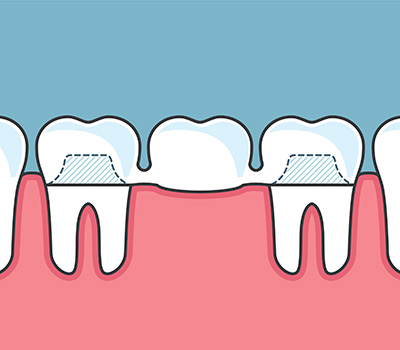 Dental Crowns & Bridges at 32 Dental Practice, Kennesaw, GA