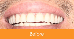 Cosmetic Dentistry Kennesaw - Case1  - Before