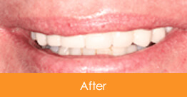 Dental Crowns and Bridges Kennesaw after picture of a patient 1