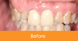 Cosmetic Dentistry Kennesaw - Case6  - Before 01
