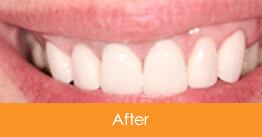 Cosmetic Dentistry Kennesaw - Case6  - After 01
