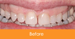 Cosmetic Dentistry Kennesaw - Case7  - Before 01