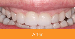 Dentistry Kennesaw Marietta - Case7  - After 01