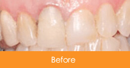 Cosmetic Dentistry Kennesaw - Case8  - Before 01