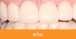 Cosmetic Dentistry Kennesaw - Case8  - After 01