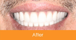 Dentistry Kennesaw Marietta - Case1  - After