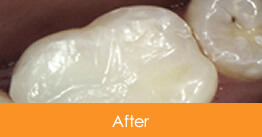 Cosmetic Dentistry Kennesaw - Case10  - After 01