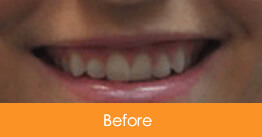 Cosmetic Dentistry Kennesaw - Case12  - Before 01
