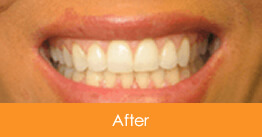 Cosmetic Dentistry Kennesaw - Case12  - After 01