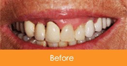 Dental Crowns and Bridges Kennesaw before picture of a patient 2