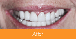Dental Crowns and Bridges Kennesaw after picture of a patient 2