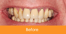 Dental Crowns and Bridges Kennesaw before picture of a patient 1