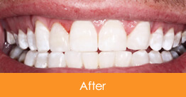 Dentistry Kennesaw Marietta - Case14  - After
