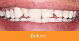 Dentistry Kennesaw Marietta - Case14  - Before