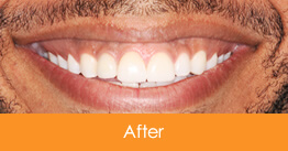 Dentistry Kennesaw Marietta - Case15  - After
