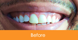 Dentistry Kennesaw Marietta - Case15  - Before