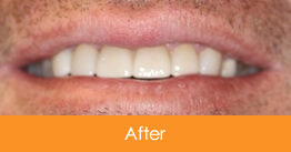 Cosmetic Dentistry Kennesaw - Case16  - After
