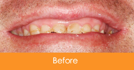 Cosmetic Dentistry Kennesaw - Case16  - Before