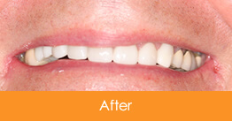 Dentistry Kennesaw Marietta - Case17  - After