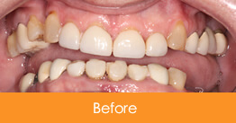 Dentistry Kennesaw Marietta - Case17  - Before