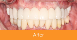 Dental Crowns and Bridges Kennesaw after picture of a patient 18