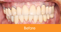 Dental Crowns and Bridges Kennesaw before picture of a patient 18