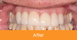 After 6 Veneers Were Placed on Upper Teeth For Smolen