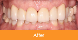 After 6 Veneers Were Placed on Upper Teeth for Pete