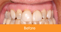 Before 6 Veneers Were Placed on Upper Teeth for Smolen