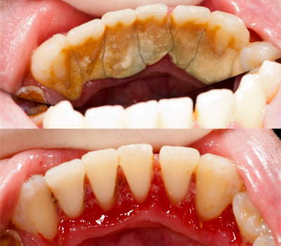 Gum Disease treatment at 32 Dental Practice, Kennesaw, GA