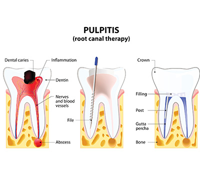 Root Canal treatment at 32 Dental Practice, Kennesaw, GA