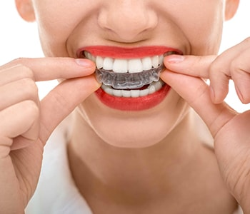 Teeth Straighten Invisalign Braces from 32 Dental in Kennesaw