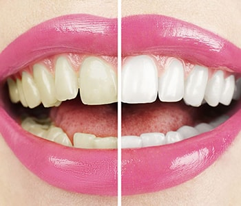 Solutions for discoloration, Thirty-Two Dental